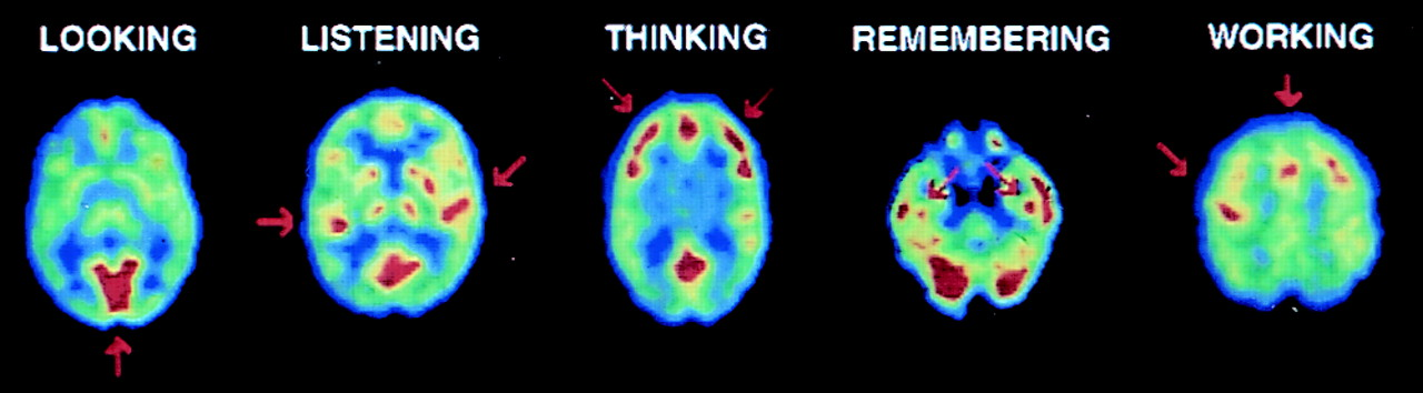 Brain activity while performing different activities, as visualized by a PET scan.